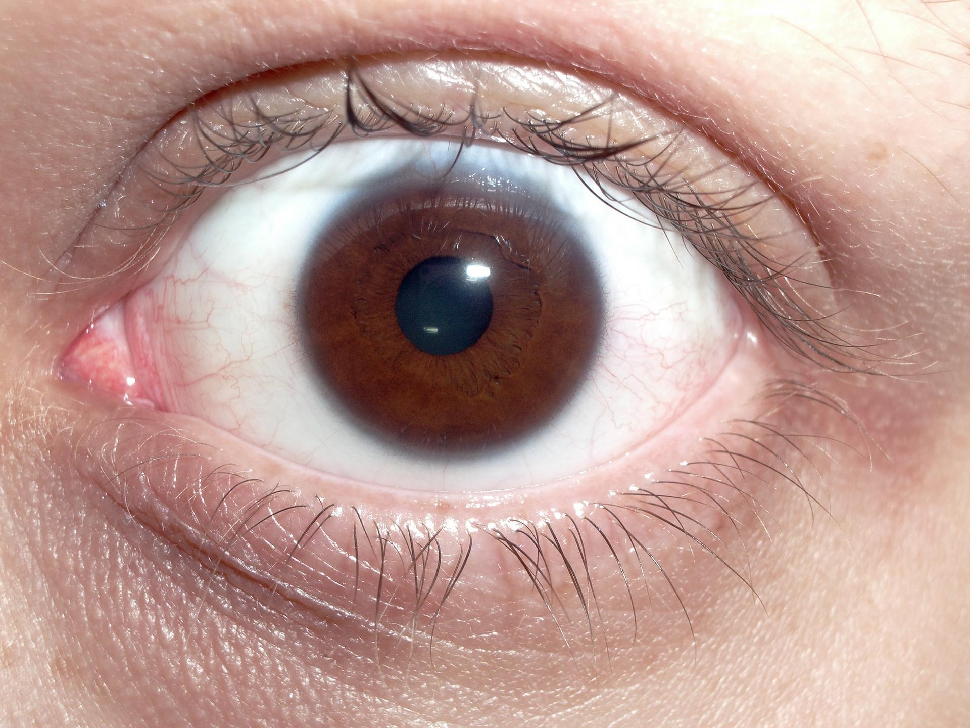 brown_human_eye.jpeg