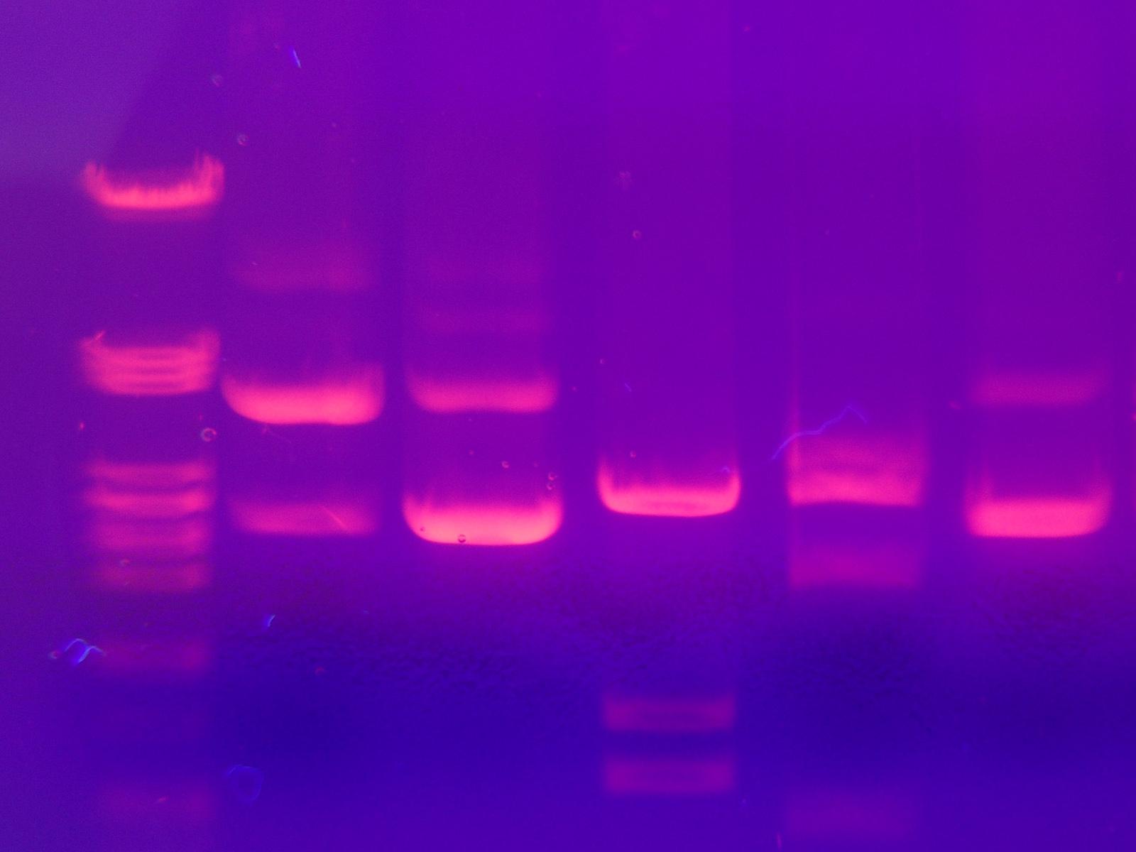 electrophoresis-gel.jpg