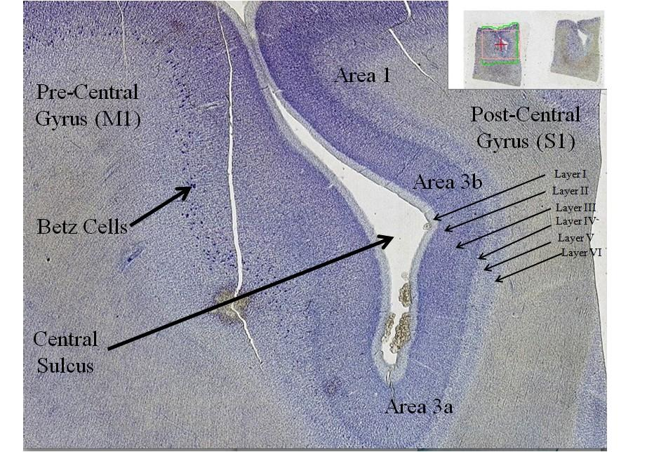central_sulcus1336398738694.jpg